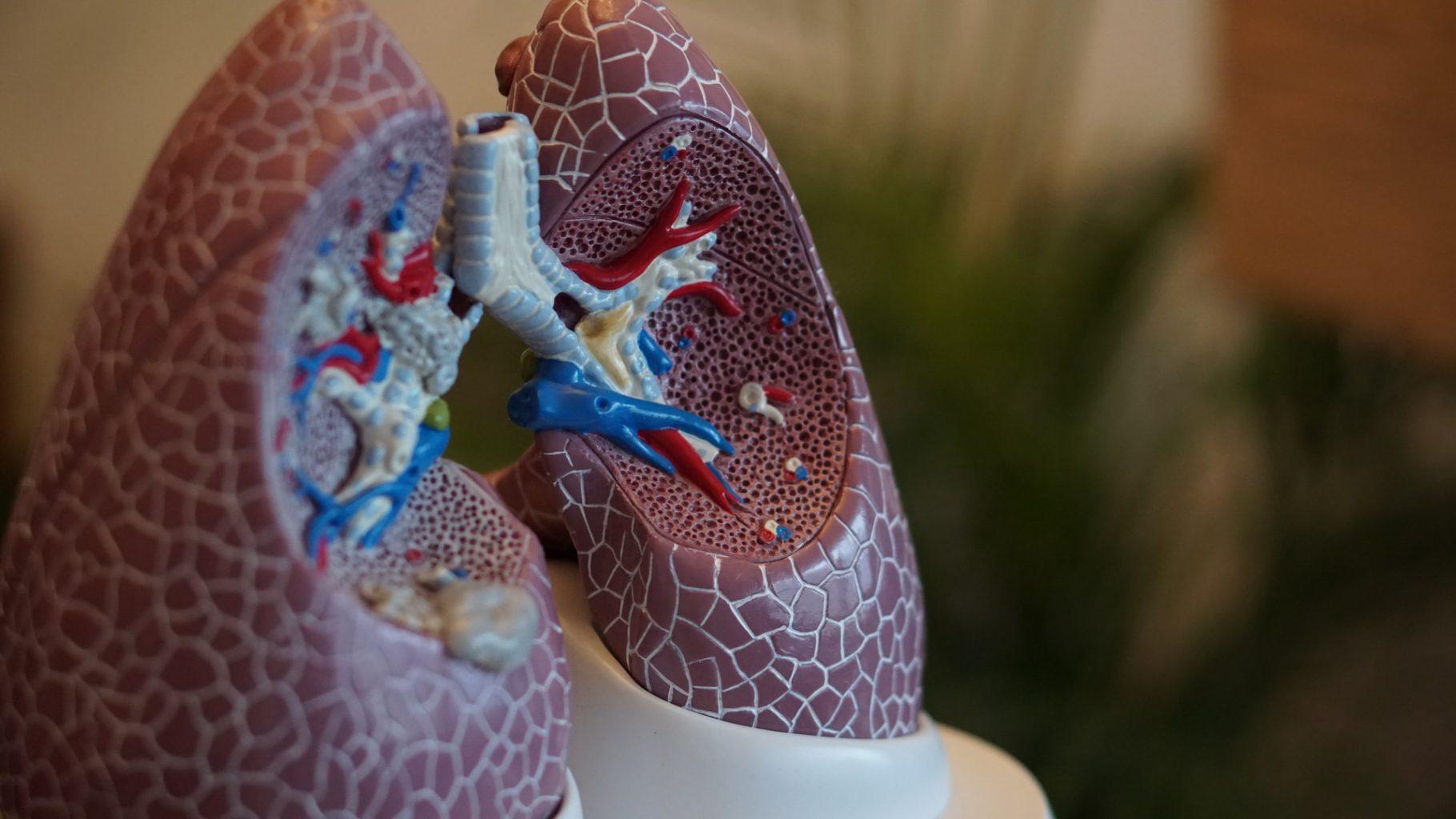 alimentos coronavirus - Los mejores alimentos para tus pulmones